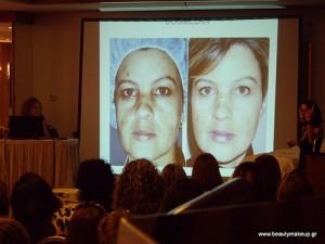 φωτογραφία απο την παρουσίαση της σειράς με την Clara Seres